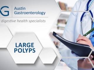 Dr. Harish Gagneja with Austin Gastro on Large Polyps