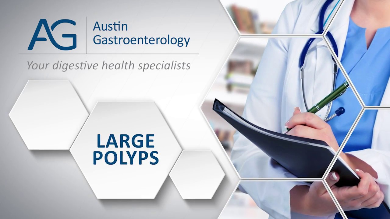Dr. Harish Gagneja with Austin Gastro on Large Polyps