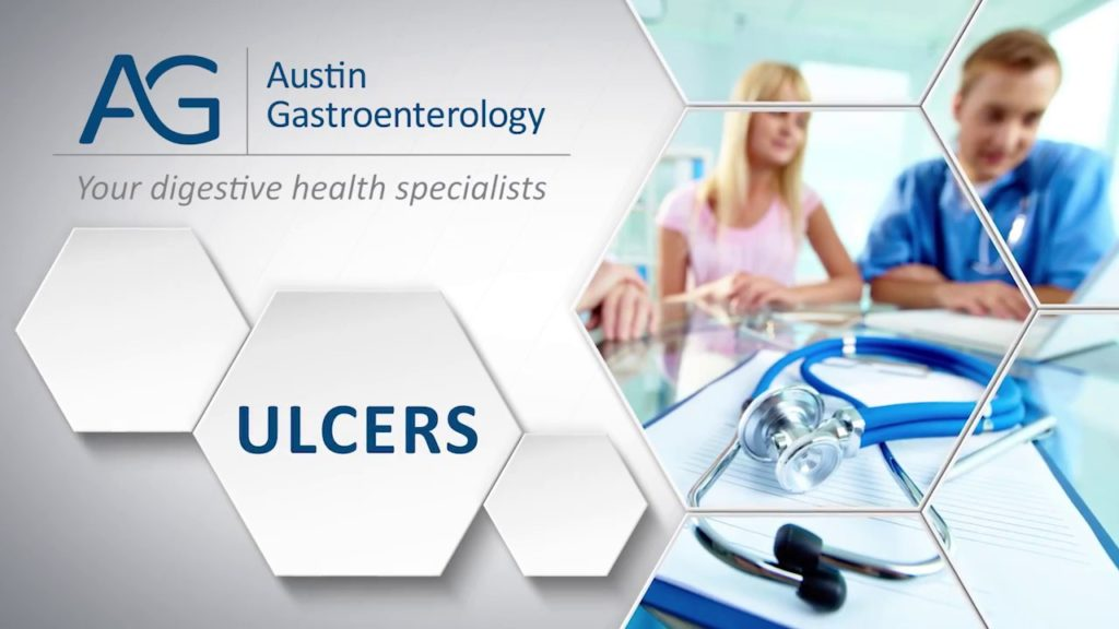 Dr. William Stassen with Austin Gastro Discussing Ulcers